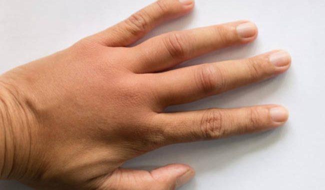 Δέκα σοβαρές παθήσεις που φαίνονται στα χέρια σας (εικόνες)