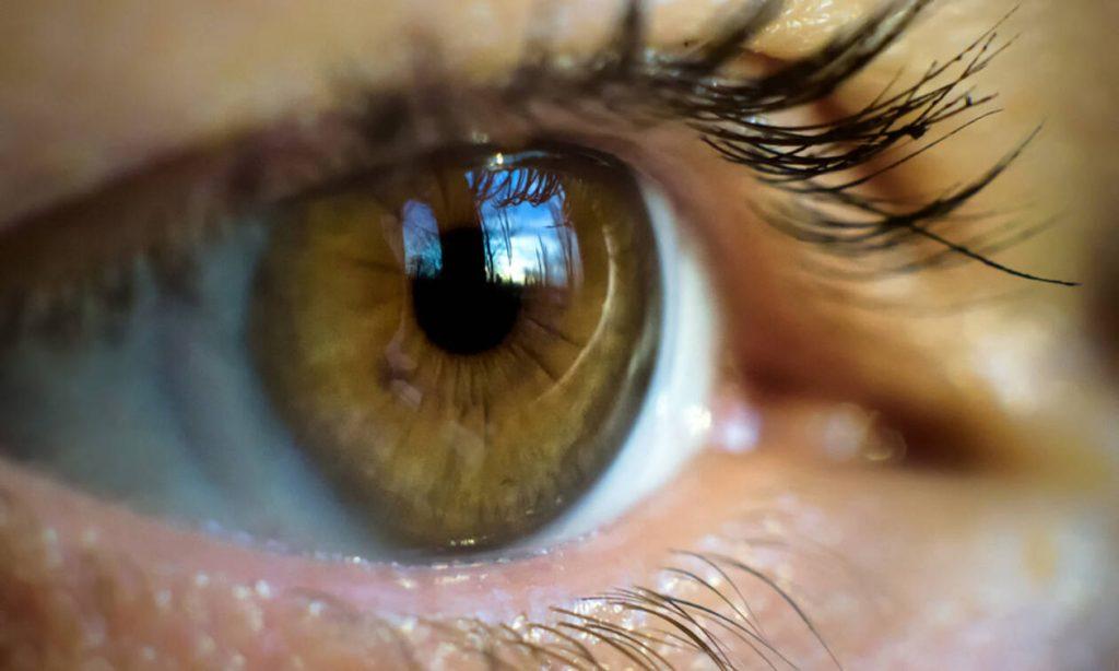 Καρκίνος πνεύμονα: Η ένδειξη στα μάτια που δεν πρέπει να αγνοήσετε (εικόνες)