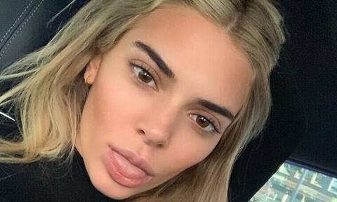 Τα χείλη της Kendall έγιναν τόσο μεγάλα που μοιάζουν με της Kylie